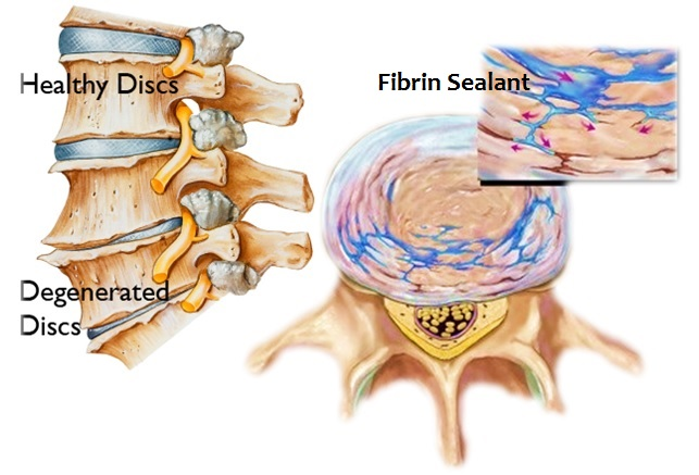 Spine Degenerative Discs